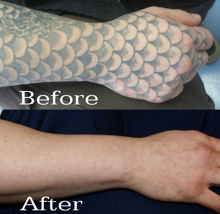 Wavelengths matter tattoo removal regen laser for Free tattoo removal denver