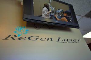 Inside Regen Laser
