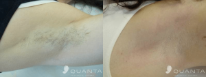 Hair-Removal-Armpit-755-Before_After
