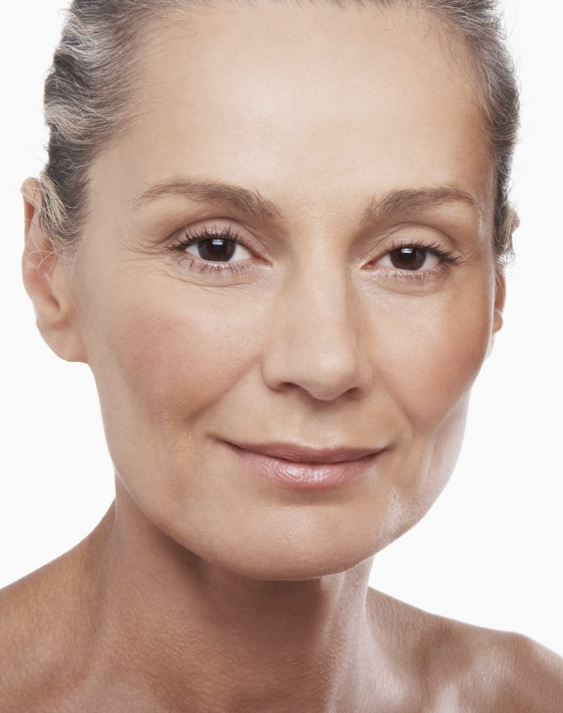 Age And Sun Spot Removal Pigmented Lesions Regen Laser