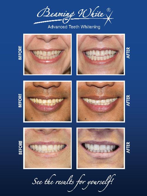 Teeth Whitening With Beaming White Regen Laser